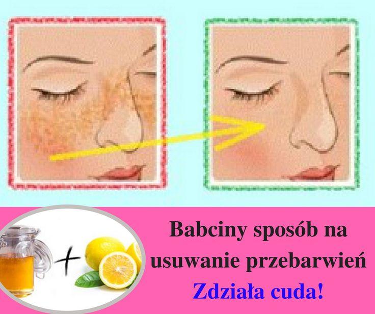 Chcesz wreszcie zaprzestać korzystać z drogich zabiegów kosmetycznych, by pozbyć się piegów? Rozwiązanie jest TU>> https://szanujezdrowie.pl/jak-usunac-przebarwienia/