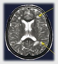 White Matter Lesions Related to Migraine < major implications for those with chronic migraines and migraine with aura