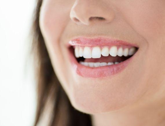 Veja como funciona as famosas lentes de contato para os dentes, que está fazendo sucesso no Brasil.