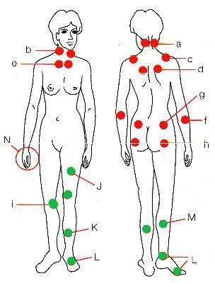 fibromyalgi triggerpunkter bild