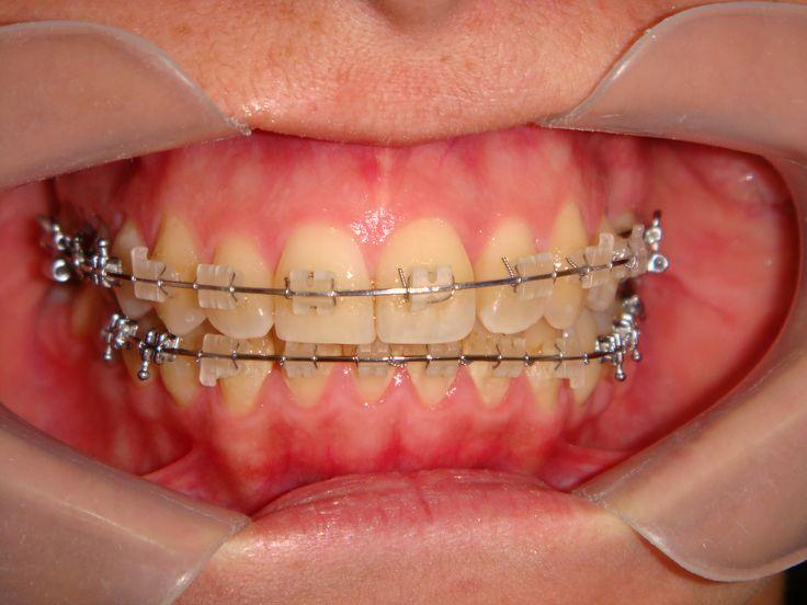 ortodoncia estetica superior e inferior con brackets de porcelana