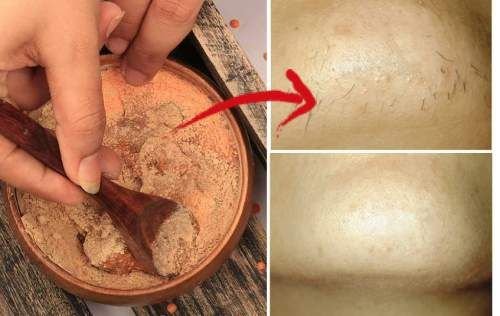 6 Inexpensive Natural Ways to Get Rid of Unwanted Chin Hair - http://eradaily.com/6-inexpensive-natural-ways-get-rid-unwanted-chin-hair/