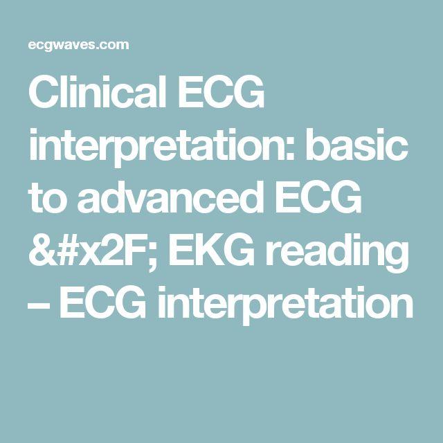 Clinical ECG interpretation: basic to advanced ECG / EKG reading – ECG interpretation