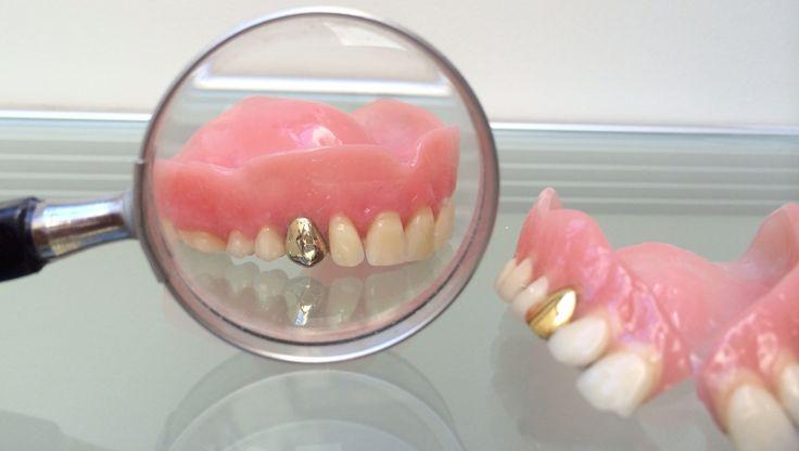 Tandprothese bovenkaak voorzien van gouden tand.     www.kunstgebitten.be
