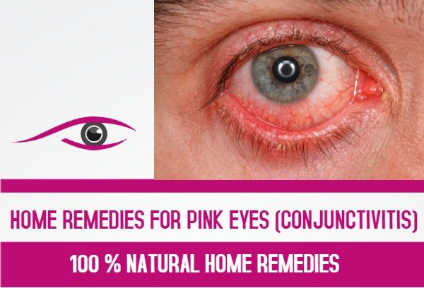Special Video For My Subscribers Home Remedies For Pink Eyes