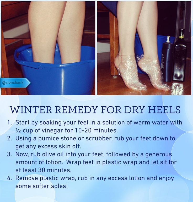 Dry Heels Keep your feet soft and hydrated during the cold, dry winter months. With a few minutes of care you will have soft, smooth feet to warm by the fire. #pedicure #wintercare #homespa #footcare