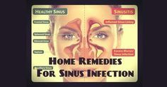 Natural Cures Not Medicine: How to treat a sinus infection naturally