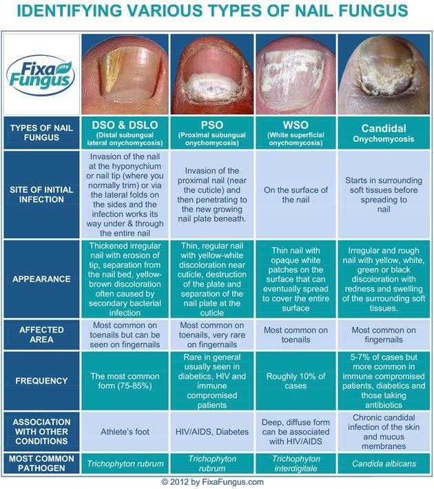 Best 20+ Treatment for toenail fungus ideas on Pinterest | Toe ...