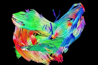 New MRI technique allows detailed imaging of complex muscle structures and muscle damage