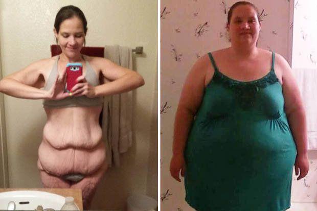Последствие похудения видео