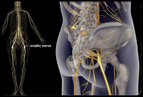 Sciatica....Symptoms and Causes....Forever Living Aloe Vera Natural Products In Pakistan