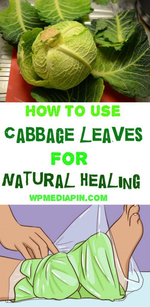 How To Use Cabbage Leaves For Natural Healing