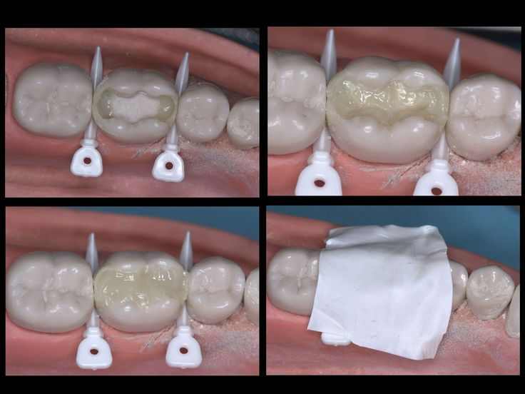 Dentaltown - Occlusal Stamp Technique for an MOD Composite. Occlusal Stamp Technique for an MOD Composite by Dr. Cory Glenn DDS. Introduction: Old technique done by many but I've only seen it done on occlusal caries and usually utilizing a clear vps. This variation allows it to be used for most any filling provided the pre-op anatomy of the tooth is intact. Dentaltown Message Board > Restorative Dentistry > http://www.dentaltown.com/MessageBoard/thread.aspx?s=2&f=216&t=234761&v=1