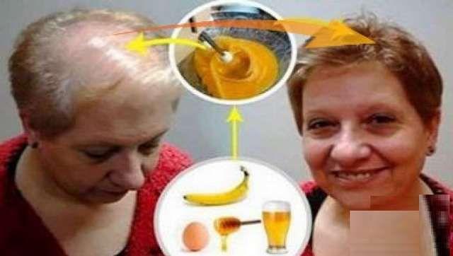 Saç çıkartan bal yumurta muz karışımı ile doktorları bile şaşırtacak derecede saçlarınız tekrar çıkacak. Herkes güçlü, güzel ve sağlıklı saçlara sahip olmak ister. Size tarif edeceğimiz bu doğal tedavi yöntemi ile bu gerçek olacak. Saçlarınızın dökülmesini önlemek için bir servet harcamanız gerek yok. Bu muhteşem doğal kür ile bunu yapabilirsiniz. Ortalama 50-100 tel saç dökülmesi …