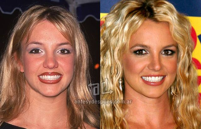 » Celebrities with Plastic Surgery | Before and After | Photos, Biography and Family