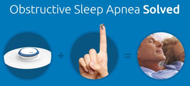 睡眠時無呼吸症候群を解決する、スタートアップ企業による超小型インプラントの開発