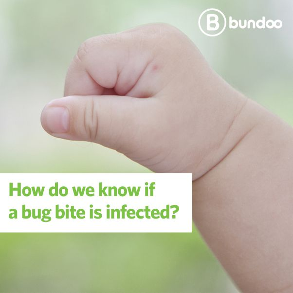 What's worse than a bug bite? An infected bug bite!