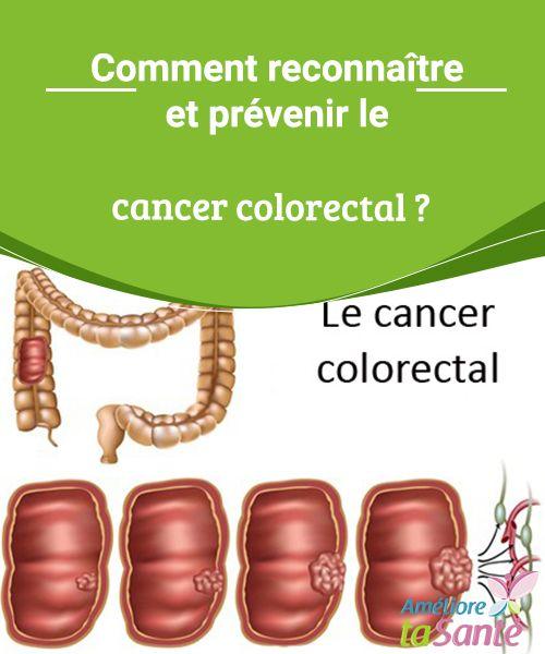 Comment reconnaître et prévenir le cancer colorectal ? Le cancer colorectal est de plus en plus fréquent de nos jours. Venez découvrir les symptômes les plus habituels et les meilleurs moyens de le prévenir.