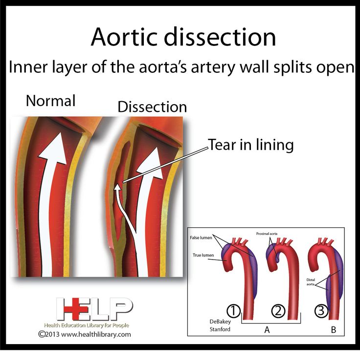 Aortic Dissection
