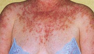 Le lupus  Une maladie auto-immune féminine