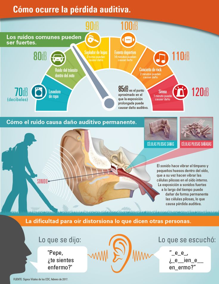 Infografía: Cómo el ruido causa daño auditivo permanente.