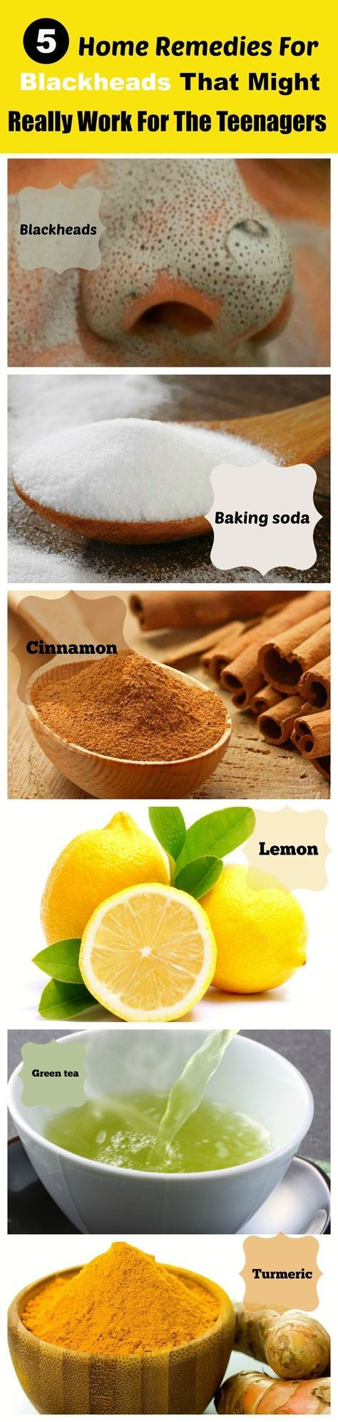 Home remedies that remove blackheads