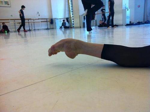 Los pies extremadamente flexibles son débiles y laxos. Tienden a sufrir lastimaduras constantes, a menos que se trabajen diario fuera de clase, por ejemplo con ligas, etc.