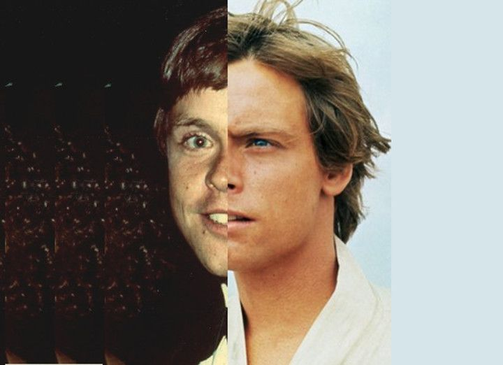 Mark Hamill's car accident/plastic surgery debate