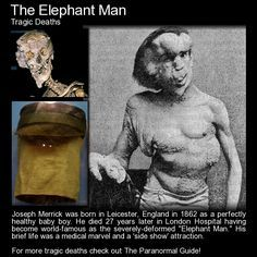 "Joseph Merrick - The Elephant Man. ""Tis true, my form is something odd, but blaming me, is blaming God, Could I create myself anew, I would not fail in pleasing you."" - Poem often quoted by Joseph Merrick, The Elephant Man. Read more about his life here: http://www.theparanormalguide.com/blog/the-elephant-man"