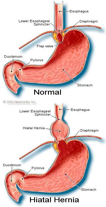 Hiatal hernia is a condition in which a portion of the stomach protrudes upward into the chest, through an opening in the diaphragm. The diaphragm is the sheet of muscle that separates the chest from the abdomen. Major cause: OBESITY [also - congenital abnormalities, trauma, surgery] Common signs: heartburn, fullness after eating, regurgitation, dysphagia [swallowing is difficult or painful]. Treatment: Eat small frequent meals [avoid large meals, you will get symptomatic], sit up 1 hour…
