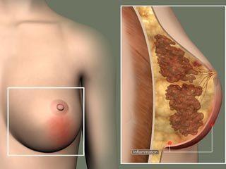 male breast feeding system jpg 1152x768