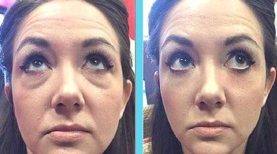 INSTANTLY AGELESS HAS EVEN BEEN CLAIMED TO BE A GREAT AND NATURAL  ALTERNATIVE TO BOTOX http://bit.ly/23ICg4g
