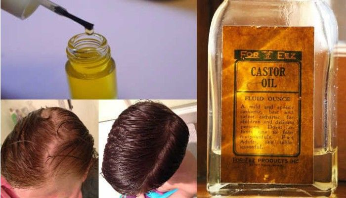 IT EVEN PREVENTS HEREDITARY BALDNESS: YOUR HAIR AND EYEBROWS WILL GROW SUPER FAST WITH THIS INGREDIENT (RECIPE)