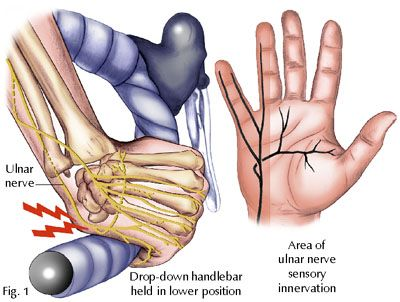 Handlebar palsy is a condition where the ulnar nerve becomes compressed or damaged due to overuse when cycling or when typing with poor hand position. Patient's will experience numbness, tingling, or sharp, shooting pain in the area of the fifth and half of the fourth fingers. :(