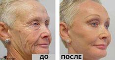 Ей 64 года, но все завидуют ее лицу без морщин! Ее тайна - один-единственный ингредиент!