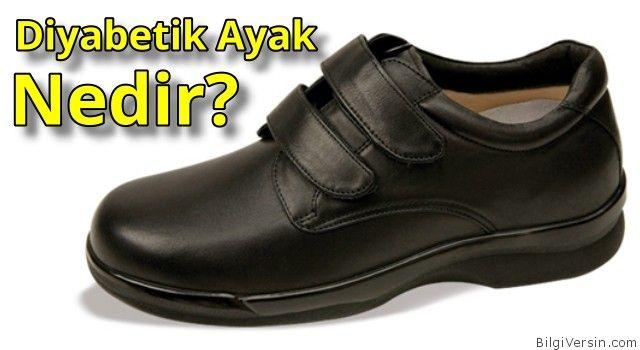 Diyabetik ayak nedir? Şeker hastaları için özel olarak üretilen ayakkabıların özellikleri nasıl olmalı?