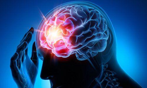 7 tips para prevenir un aneurisma - Mejor con Salud | mejorconsalud.com