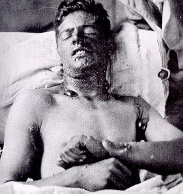A Canadian Soldier suffering from Mustard Gas burns during WW1 also referred to as The Great War.