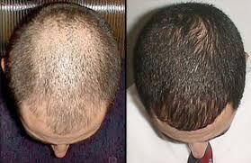 Este medicamento inicialmente fue utilizado para tratar la presión arterial elevada, pero demostró que hacia crecer el pelo en diversas partes del cuerpo, incluso en la áreas de calvicie que aun tenia pelo delgado o vello. Como medicamento antihipertensivo no demostró ser muy eficaz. Ahora puede Comprar Rogaine para mejorar su crecimiento del cabello y no quedarse calvo. http://suplementosabc.org/rogaine