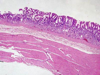 57 best images about { Histology & A&P II } on Pinterest ...