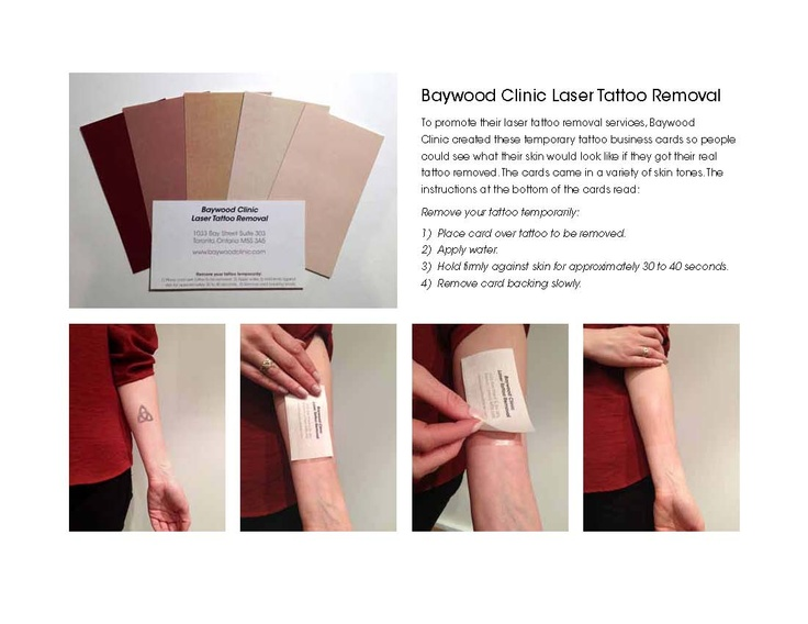 Cool business card design for laser tattoo removal company