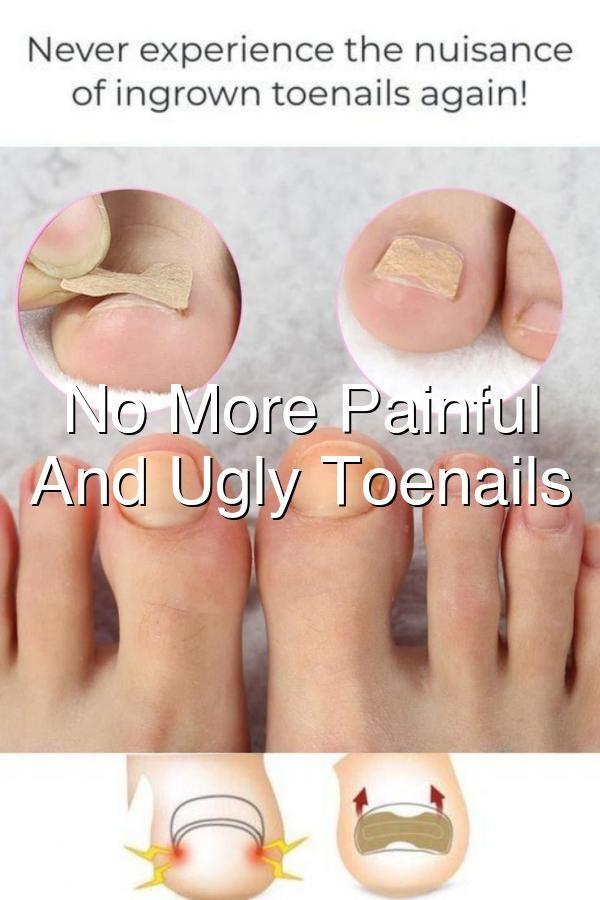 Pin On Nail Care