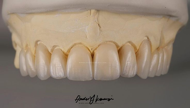 Cosmetic Dentistry Page: http://www.myimagedental.com/services/cosmetic-dentistry/ Google My Business: htt...