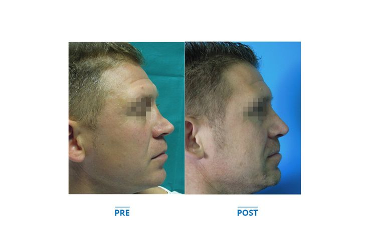 Plastic surgery - Chirurgia plastica secondaria, naso insellato