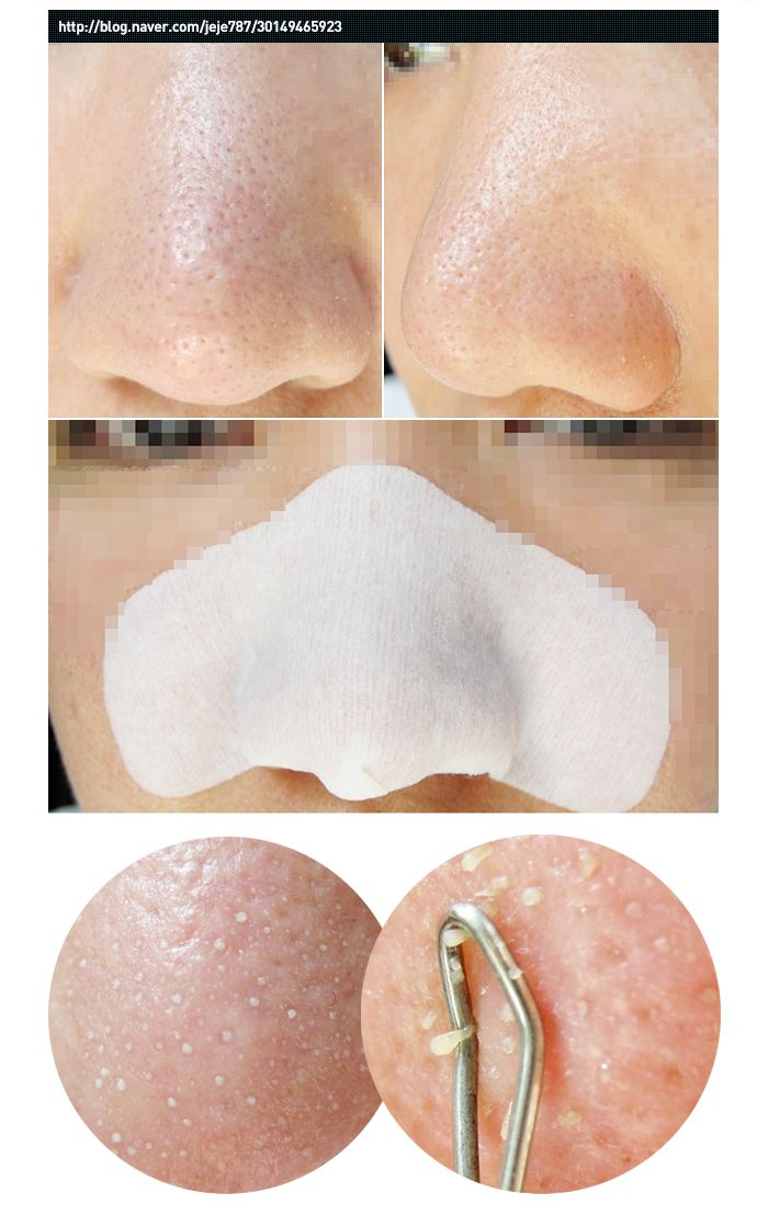homemade-blackheads-removal-facial-strips-cunt-busting-photos