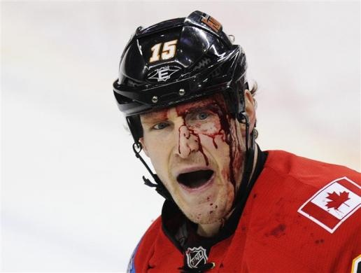 Calgary Flames' Tim Jackman is covered in blood after fighting Minnesota Wild's Brad Staubitz (not seen) during the first period of their NHL hockey game in Calgary, Alberta, December 20, 2011. REUTERS/Todd Korol