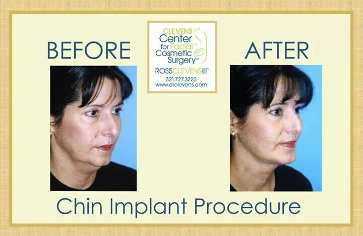 Before and after plastic surgery chin implant by dr
