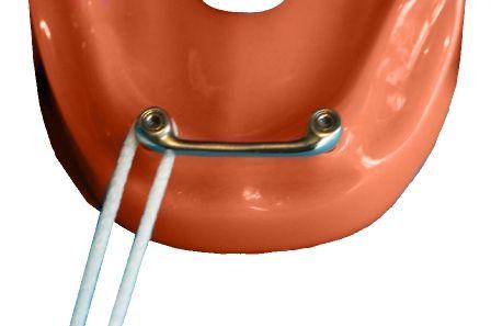 Implantaat steg schoonhouden met floss; bezoek uw mondhygiënist voor een individueel advies