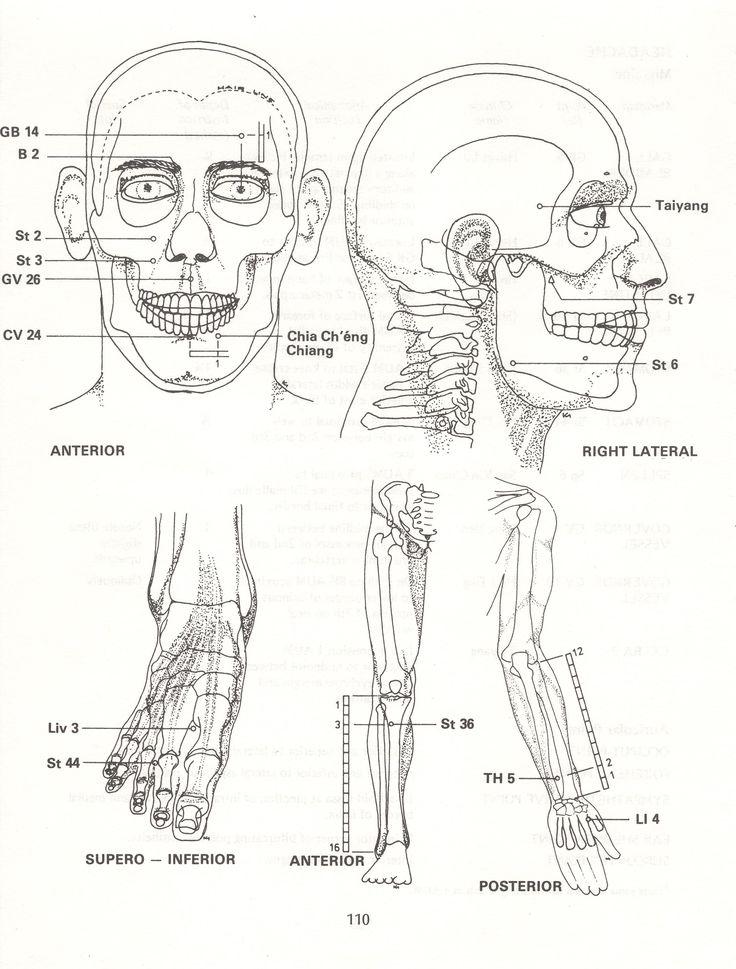 TRIGEMINAL Neuralgia (contd.)