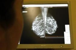 Rakovina prsu ohrožuje i muže, v Česku jich onemocní 60 ročně. Choďte na mamograf, vyzývají lékaři